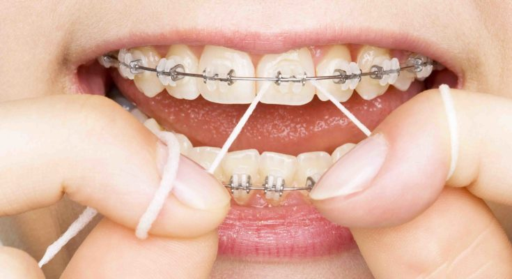 Give You Family The Dental Care They Need For Less